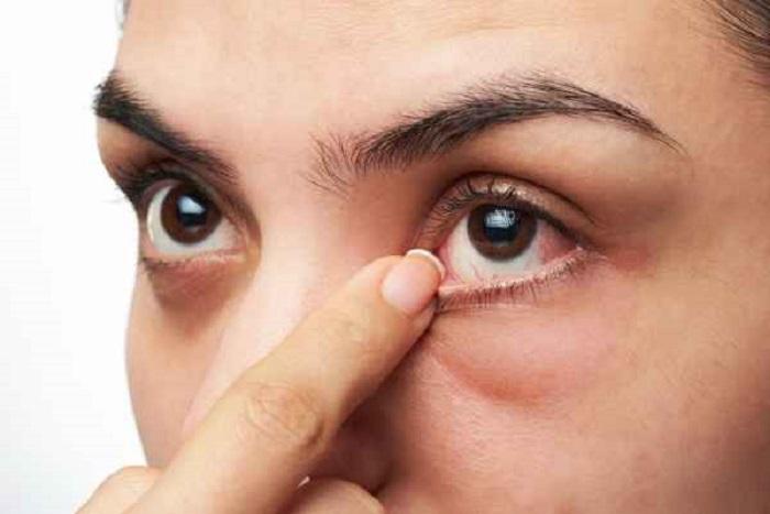 โรคในดวงตาที่ต้องระวัง เพื่อสุขภาพการมองเห็นที่ดี